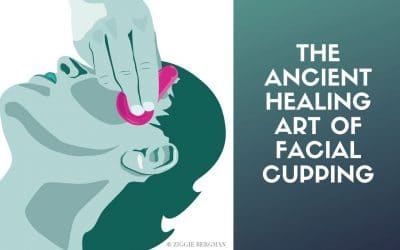 Cupping – an Ancient Chinese Practice Becomes the Hottest Trend