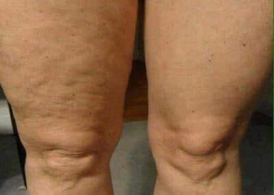 ageLOC-Galvanic-Spa-Body-Legs-gallery