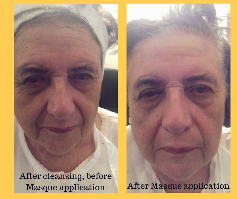Creamy-Hydrating-Masque-Wendy-Before-After